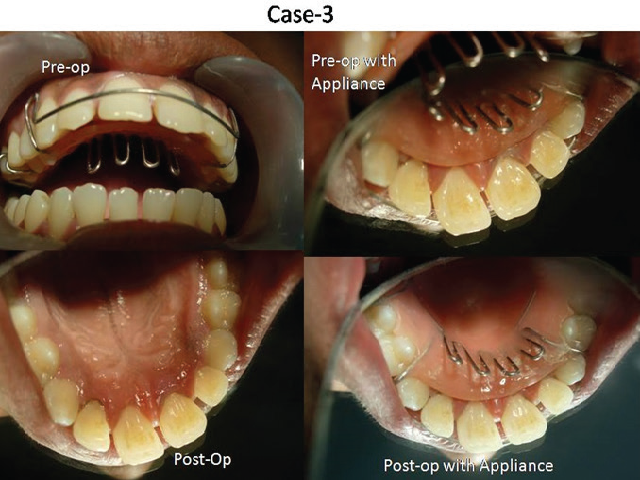 Case No.3- Pre-op photo and Post-op photos after Non-surgical Periodontal Therapy