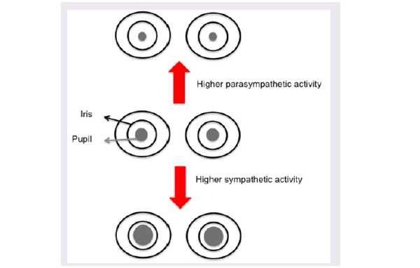 A schematic representing the effect of autonomic system activity on pupil diameter.