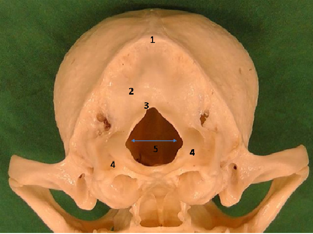 Caudal view of skull of Chihuahua dog